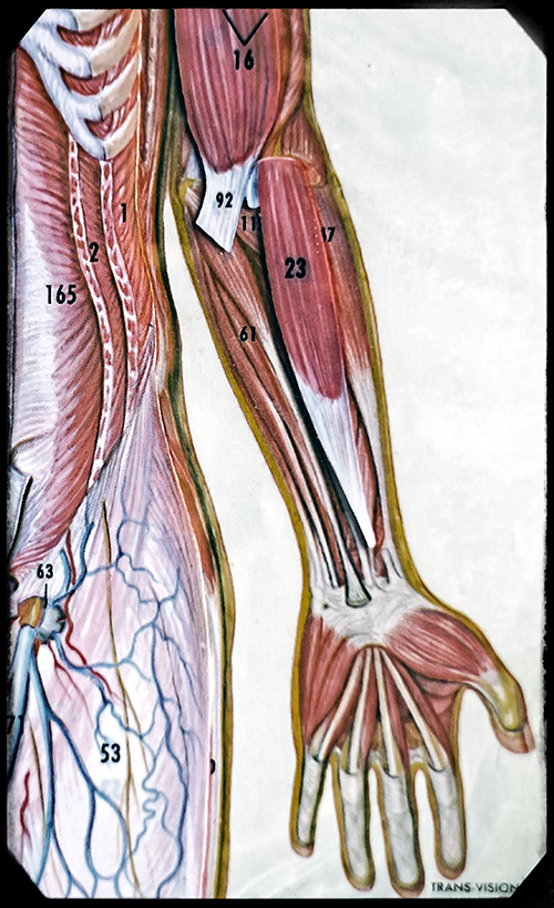 median nerve damage